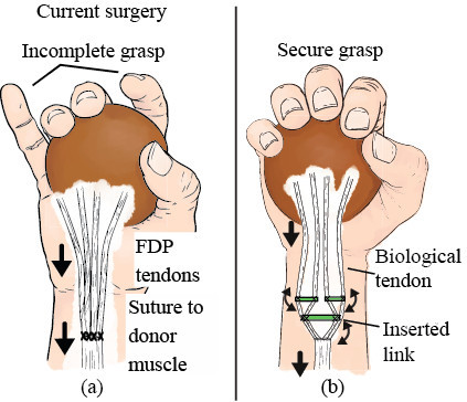 Implantable adaptive grasping mechanism